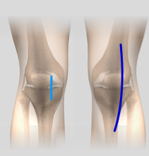 Minimally Invasive Knee Replacement Incisions